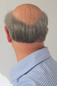 androgenetische Alopezie, erblich bedingter Haarausfall
